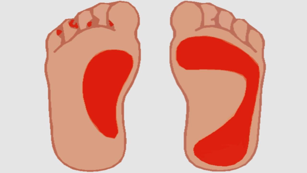piede d'atleta