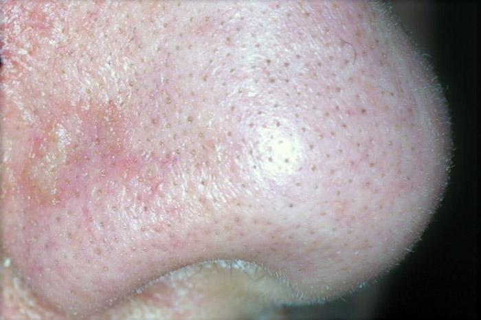 punti neri falsi del naso