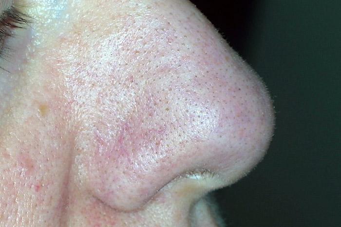 punti neri al naso falsi