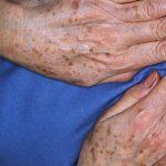 macchie dell'età dorso mani