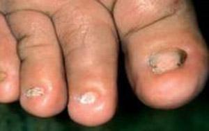 anonichia al piede