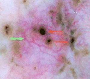 epitelioma basocellualre