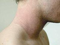 dermatite atpoca al collo