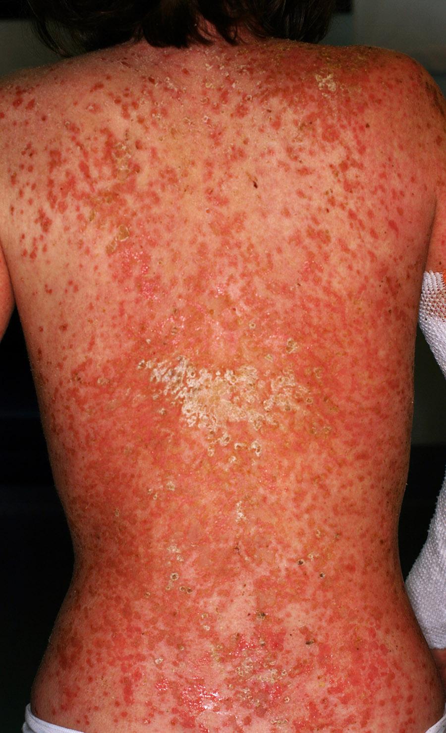 dermatite atopica diffusa