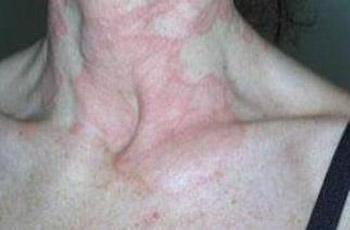 dermatite atopica al collo