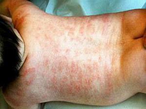 dermatite atopica infantile