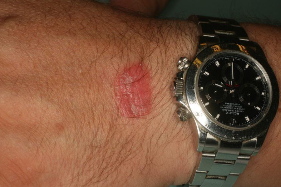 dermatite allergica da contatto