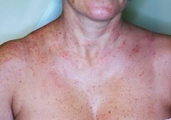 dermatite da gatta pelosa
