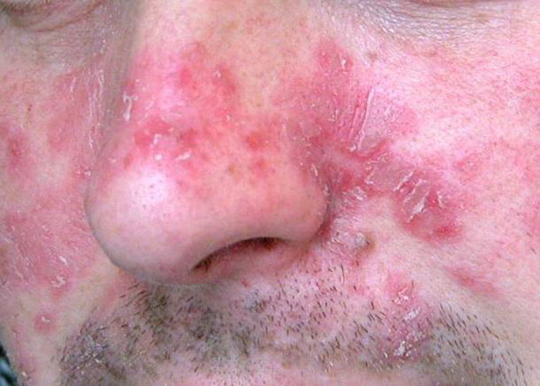 dermatite seborroica infiammata