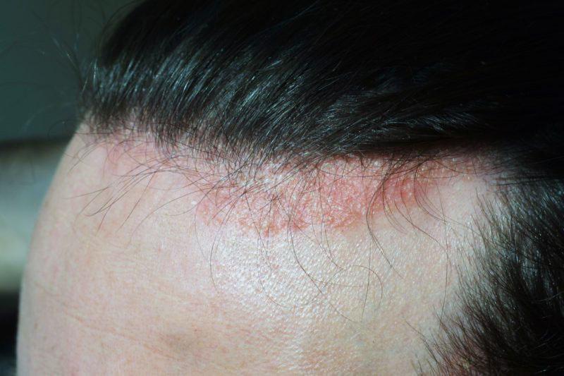 dermatite seborroica fronte