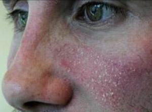 dermatite seborroica del volto