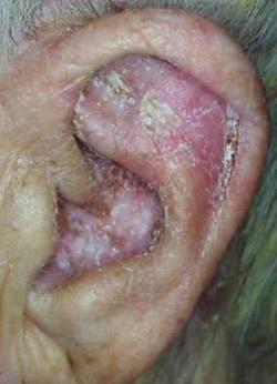 dermatite seborroica auricolare