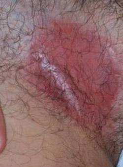 dermatite seborroica inguinale