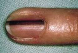 melanonichia