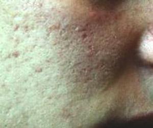 depressioni cicatriziali da acne