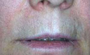 perforazione labbro superiore