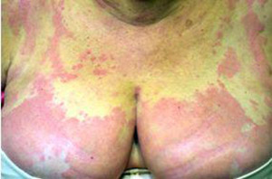 orticaria angioedema