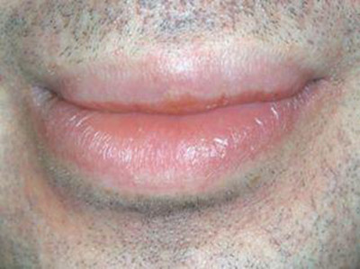 angioedema labiale