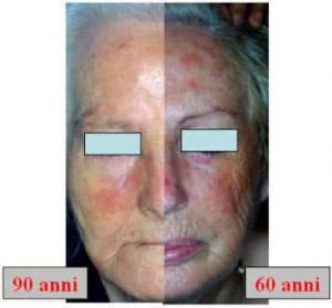 trattamento fotodinamico