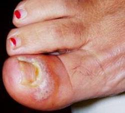 Perionissi da Herpes simplex