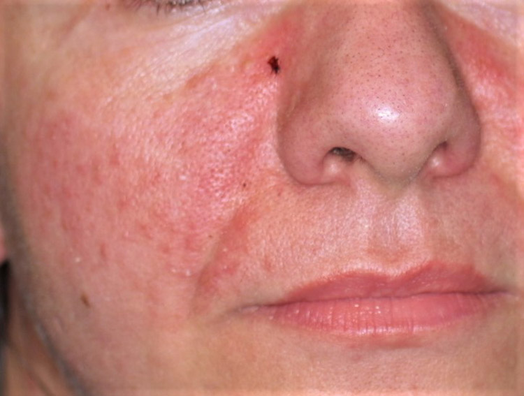 couperose acneica