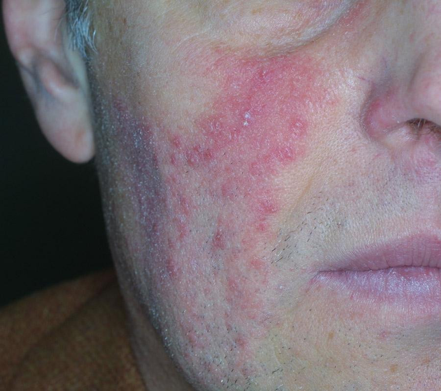 rosacea acneica