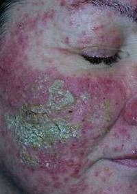 tossicità cutanea in terapia oncologica