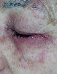 dermatite delle palpebre