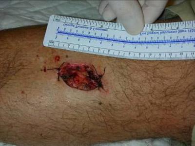 ulcera chirurgica alla gamba