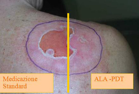 ulchera e terapia fotodinamica