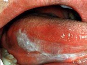 leucoplachia linguale