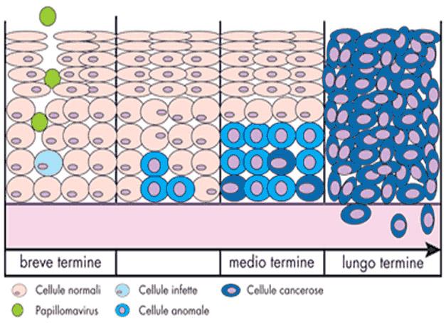 schema della degenerazione da HPV