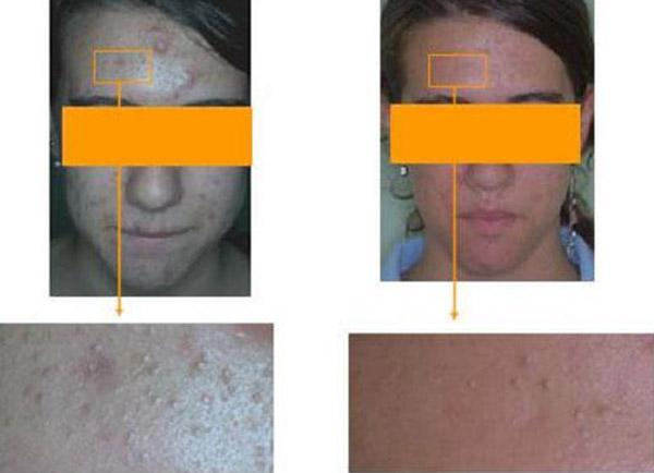 acne e terapia fotodinamica