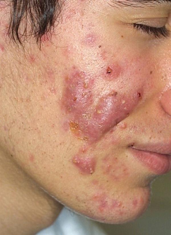 acne a componente cistica