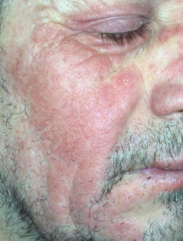 allergia solare