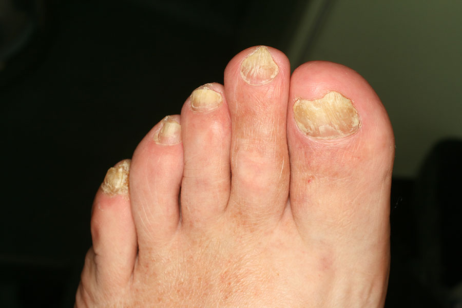 malodore del piede