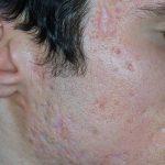 cicatrici post acne