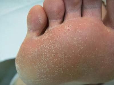 pianta del piede con colonizzazione batterica