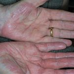 disidrosi infiammatoria
