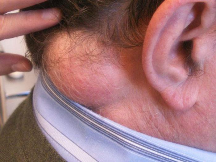 lipoma o lipofibroma