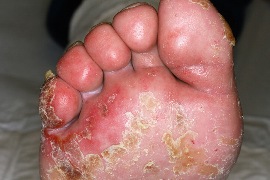 macerazione acuta del piede