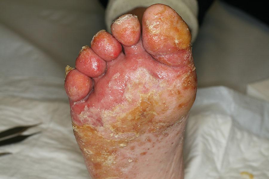 macerazione interdigitale piede