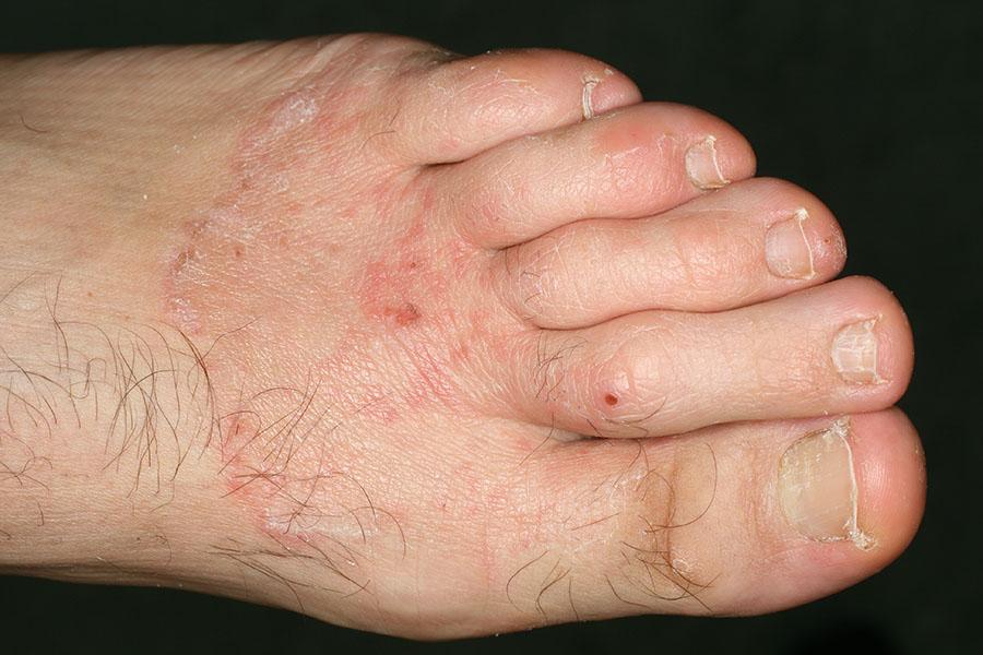infezione da fungo