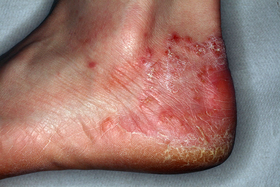 funghi al piede