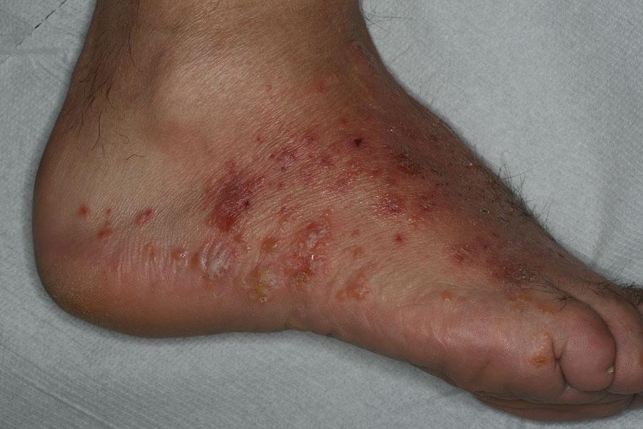 infezioen fungina