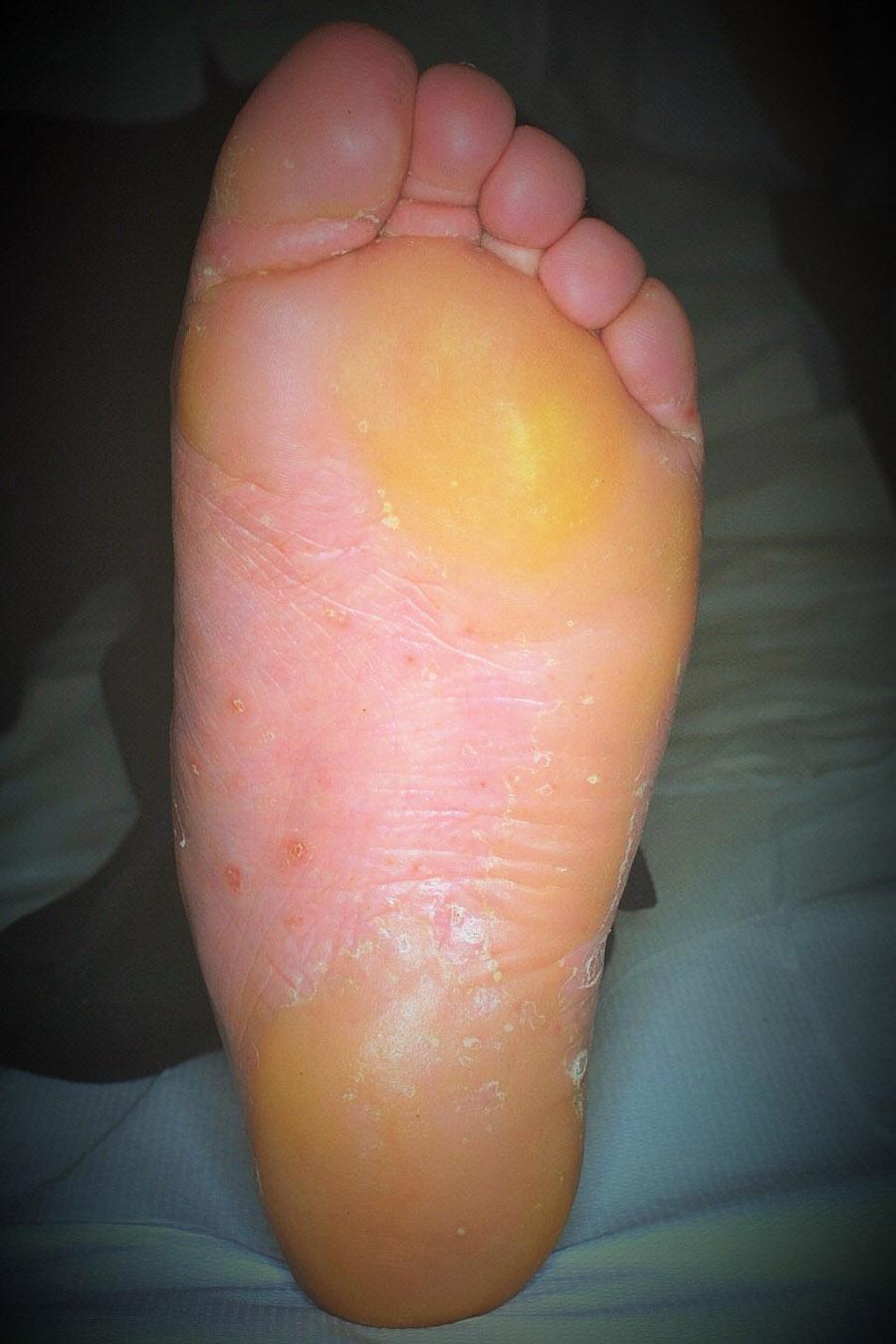 psoriasi ipercheratosica a placche