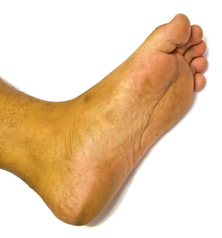 piede senza lesioni
