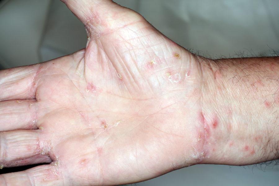 lesioni della scabbia