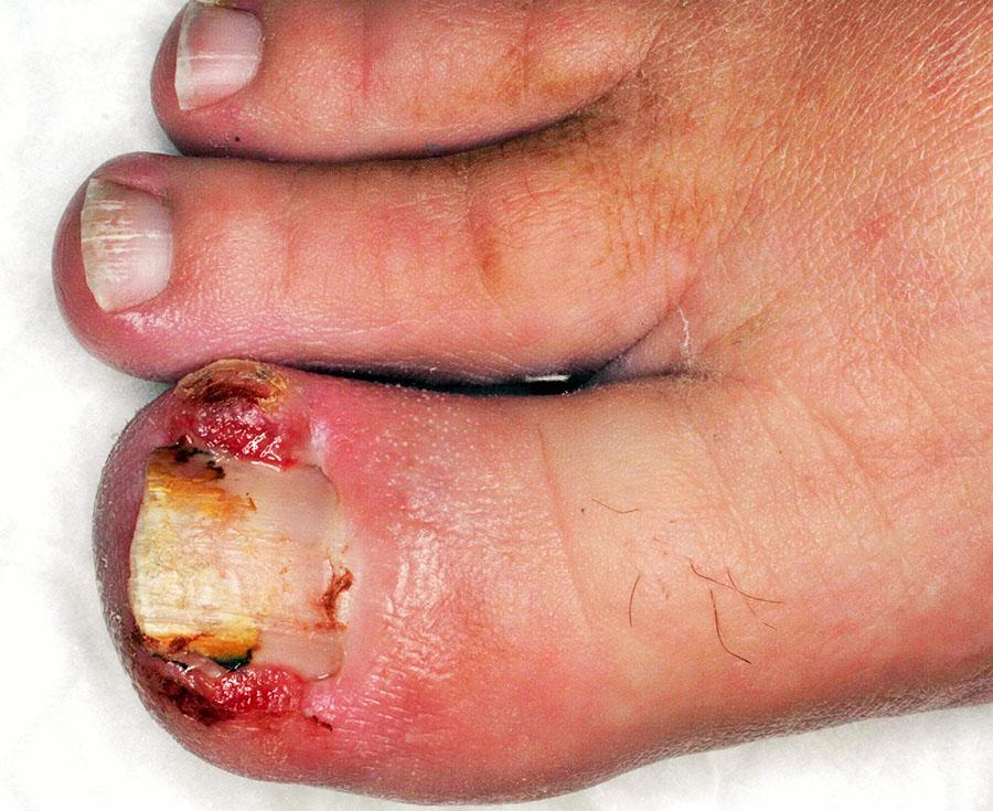 unghia incarnita e granulomi