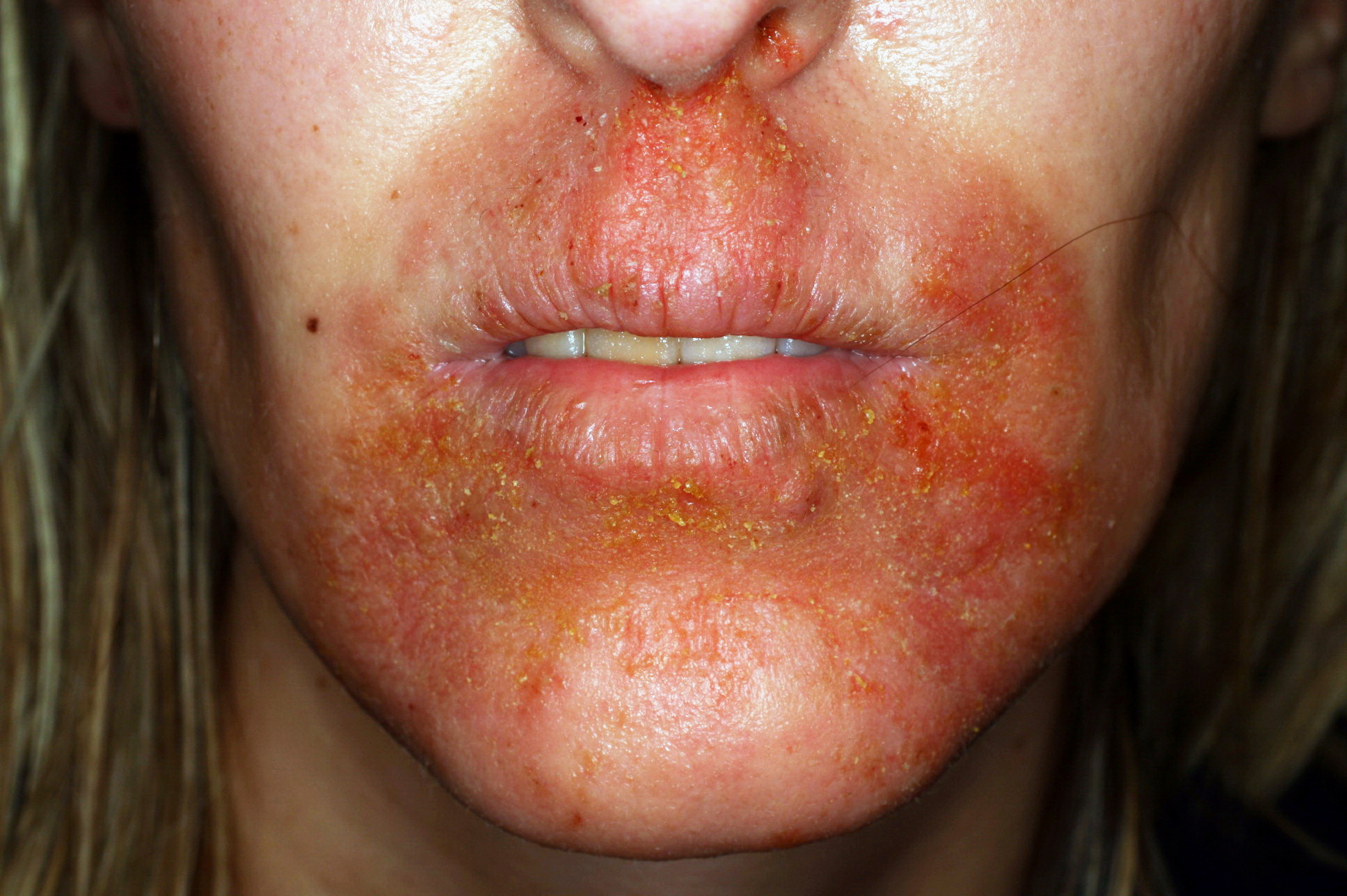 dermatite da cortisone